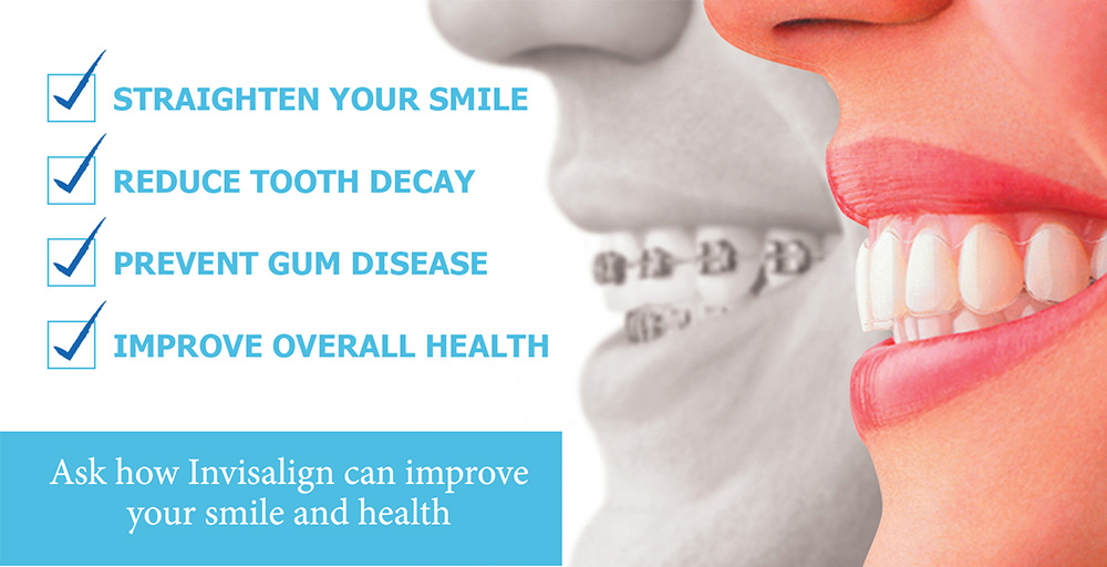 Invisalign treatment in Bedminster NJ