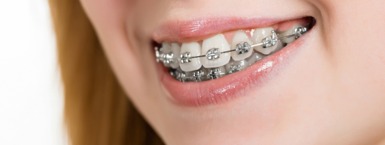 How your orthodontist can help treat sleep apnea